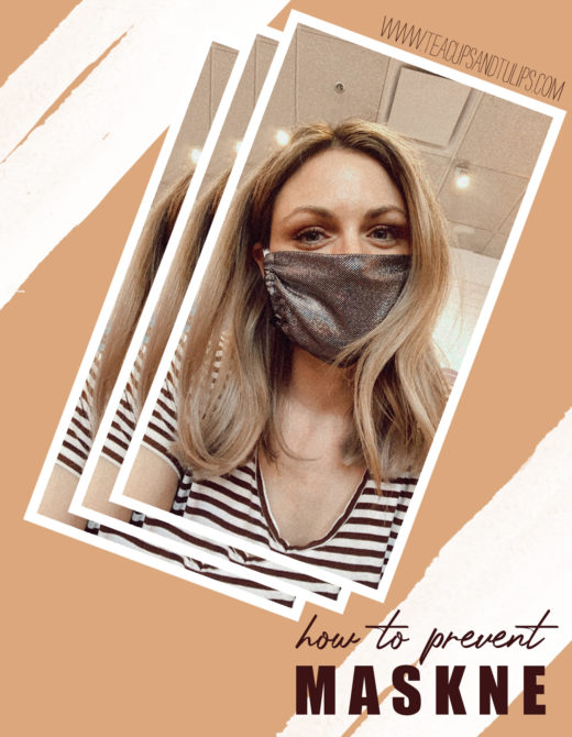 How to Prevent and get rid of Maskne, tips featured by top LA beauty blogger, Tea Cups & Tulips.